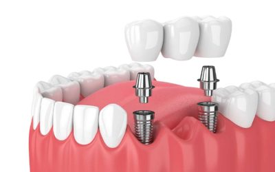 Avantages des implants dentaires par rapport au bridge